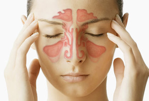 أعراض التهاب الجيوب الانفية