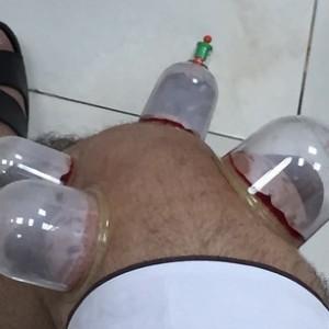 علاج خشونة الركبة بالحجامة :