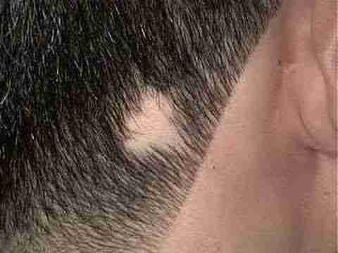 Treatment of alopecia