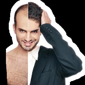 زراعة الشعر 1