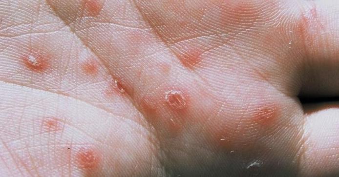 مرض الزهري