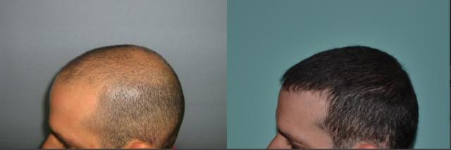 زراعة الشعر فى السعودية التكلفة وافضل المراكز المتخصصة