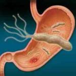 علاج جرثومة المعدة