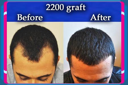 تكلفة زراعة الشعر فى تركيا